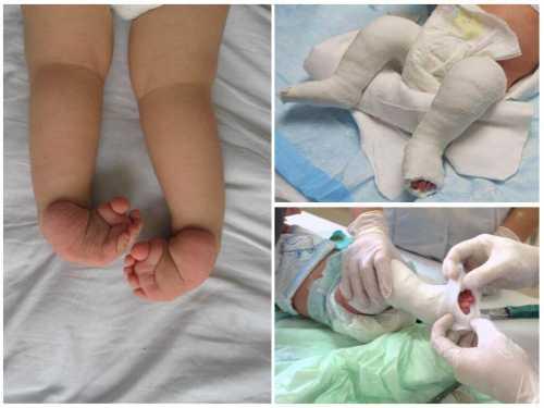 Косолапие у детей: лечение и осложнения