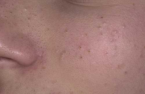 Теперь, если у вас вдруг появятся открытые или закрытые комедоны, причины ухудшения состояния кожи вам известны