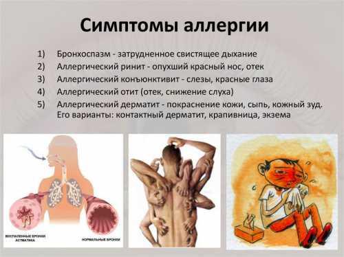 Аллергия весной: виды, симптомы, лечение