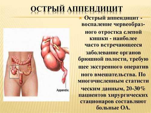 Воспаление аппендикса: симптомы, причины, это