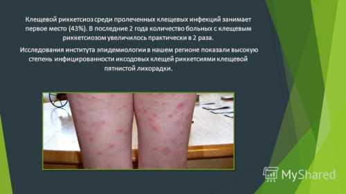 Лечение клещевого риккетсиоза: симптомы