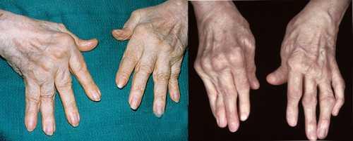 Ревматоидный полиартрит: симптомы, причины, это