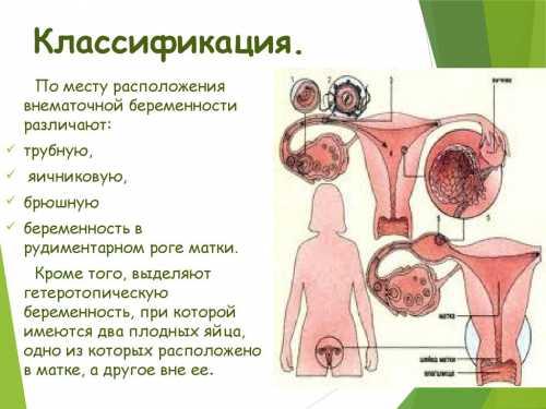 Почему появляется внематочная беременность, как