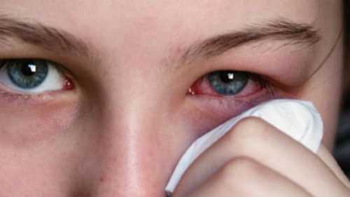 Болят глаза: в чём причина, эта проблема может