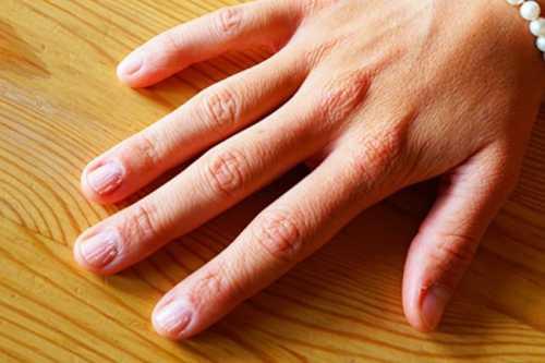 Проблемы с ногтями