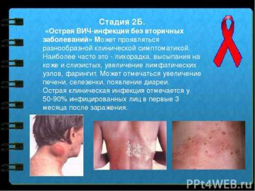Спид у мужчин: симптомы, причины, это заболевание