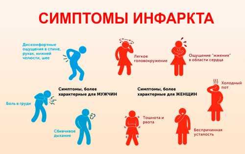 Предынфарктное состояние: симптомы, причины, это