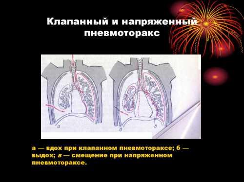 Пневмоторакс легкого напряженный, клапанный