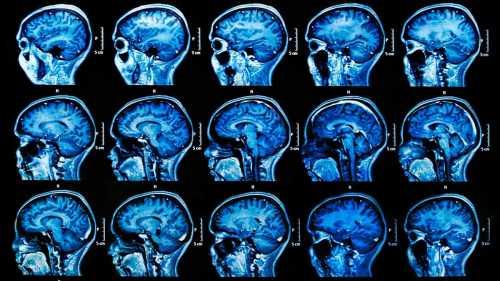 Сканирование мозга может предсказать способность