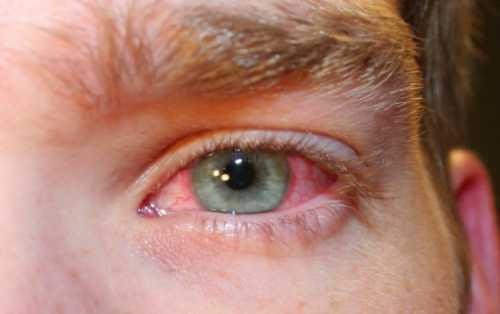 Дёргается глаз: причины, это заболевание может