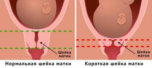 Матка и шейка матки при беременности