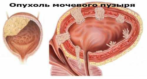 Рак мочевого пузыря у мужчин: симптомы, причины,