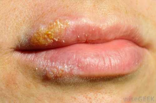 Поцелуйная болезнь: как лечить герпес