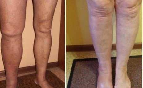 Тромбоз глубоких вен: не откладывайте лечение